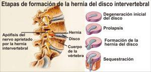tratamiento de ozono para hernias discales - grafico